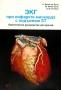 ЭКГ при инфаркте миокарда с подъёмом ST. Байес де Луна