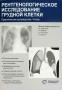 Рентгенологическое исследование грудной клетки. Хофер М.