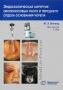 Эндоскопическая хирургия околоносовых пазух и переднего отдела основания черепа. Виганд М